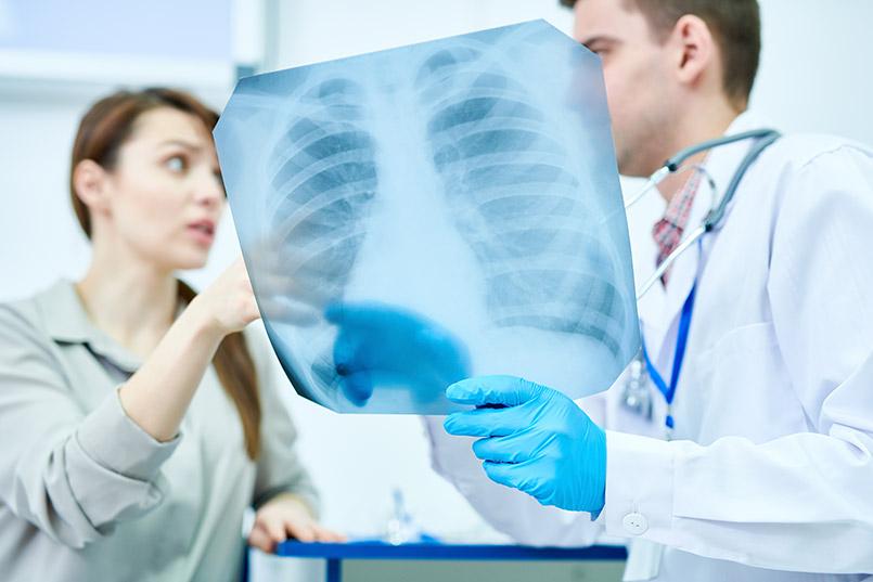 Badanie RTG klatki piersiowej
